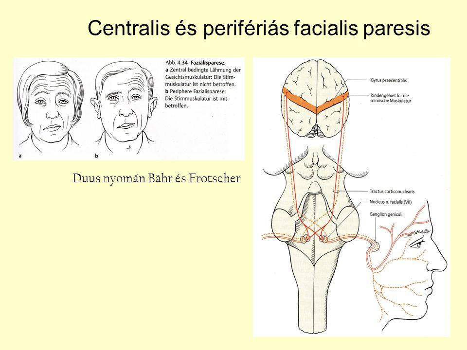 Centralis és perifériás facialis paresis Duus nyomán Bähr és Frotscher