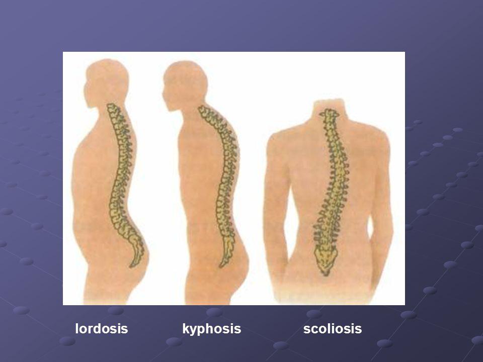 lordosis kyphosis scoliosis