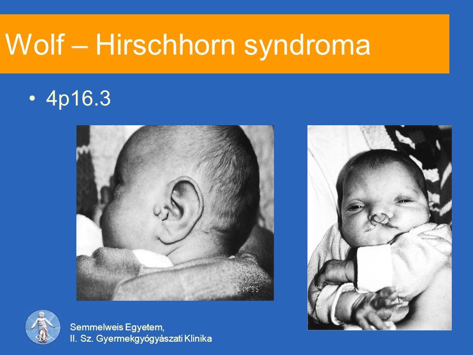 Semmelweis Egyetem, II. Sz. Gyermekgyógyászati Klinika Wolf – Hirschhorn syndroma 4p16.3