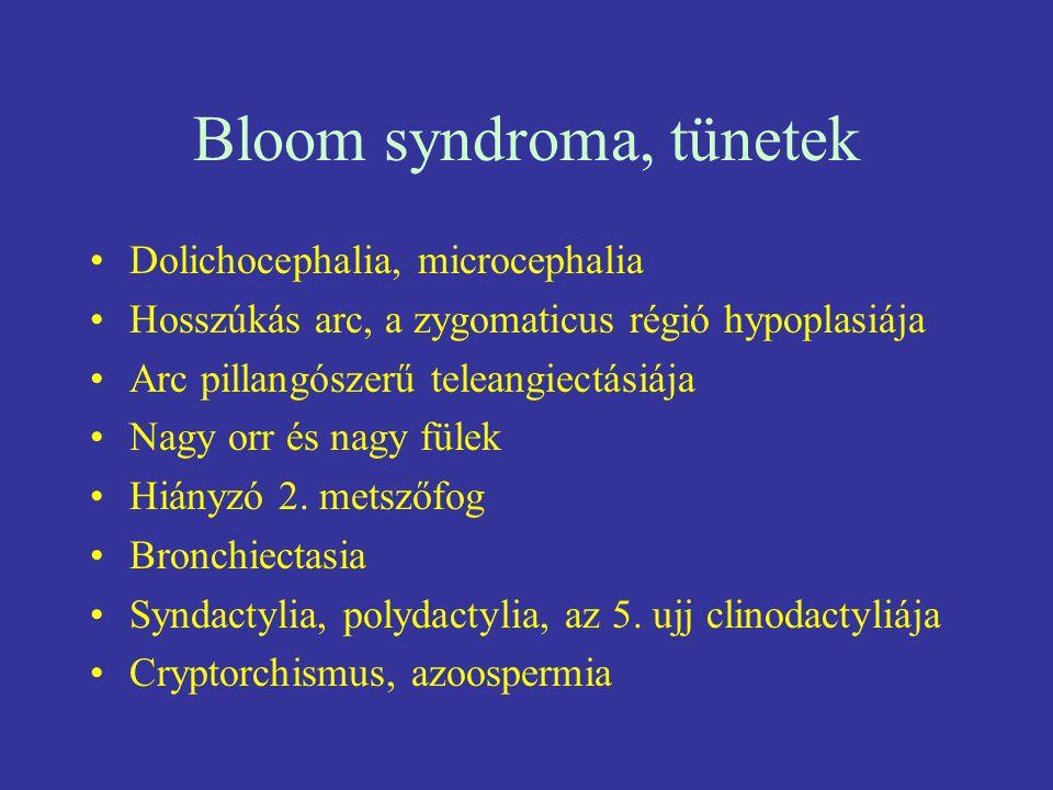 Bloom syndroma, tünetek Dolichocephalia, microcephalia Hosszúkás arc, a zygomaticus régió hypoplasiája Arc pillangószerű teleangiectásiája Nagy orr és
