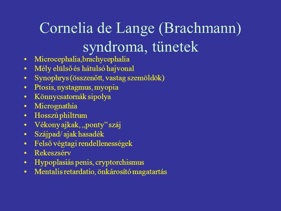 Cornelia de Lange (Brachmann) syndroma, tünetek Microcephalia,brachycephalia Mély elülső és hátulsó hajvonal Synophrys (összenőtt, vastag szemöldök) P
