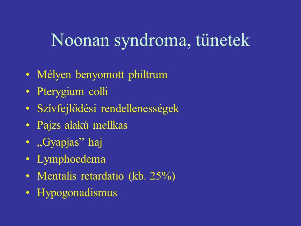 """Noonan syndroma, tünetek Mélyen benyomott philtrum Pterygium colli Szívfejlődési rendellenességek Pajzs alakú mellkas """"Gyapjas"""" haj Lymphoedema Mental"""