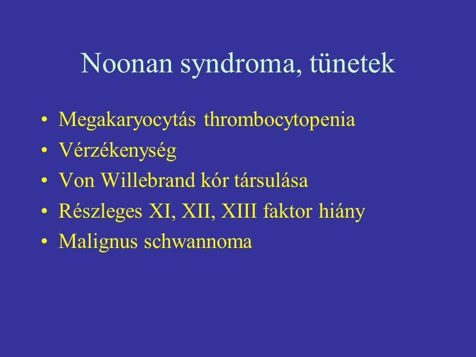 Noonan syndroma, tünetek Megakaryocytás thrombocytopenia Vérzékenység Von Willebrand kór társulása Részleges XI, XII, XIII faktor hiány Malignus schwa