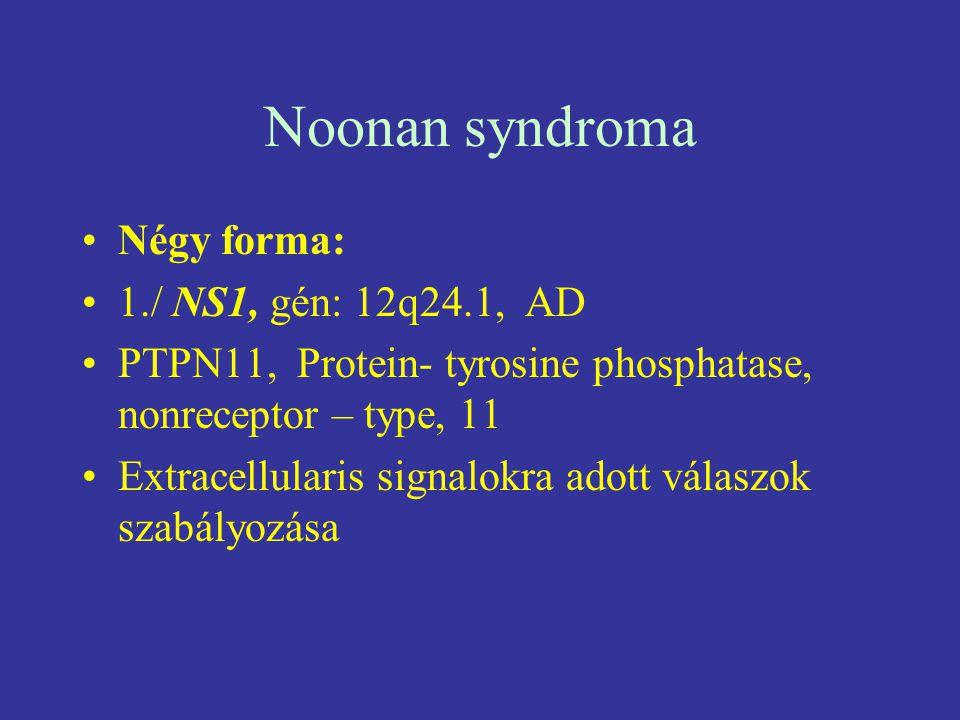 Noonan syndroma Négy forma: 1./ NS1, gén: 12q24.1, AD PTPN11, Protein- tyrosine phosphatase, nonreceptor – type, 11 Extracellularis signalokra adott v