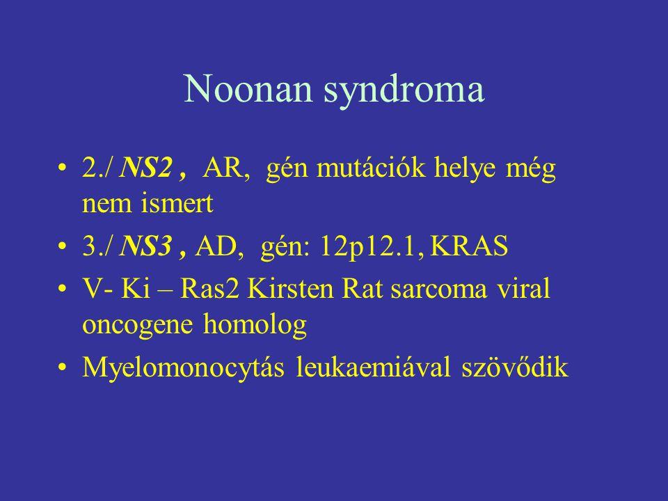 Noonan syndroma 2./ NS2, AR, gén mutációk helye még nem ismert 3./ NS3, AD, gén: 12p12.1, KRAS V- Ki – Ras2 Kirsten Rat sarcoma viral oncogene homolog