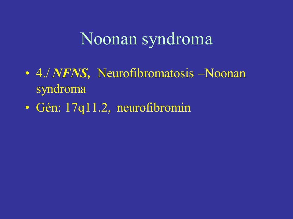Noonan syndroma 4./ NFNS, Neurofibromatosis –Noonan syndroma Gén: 17q11.2, neurofibromin