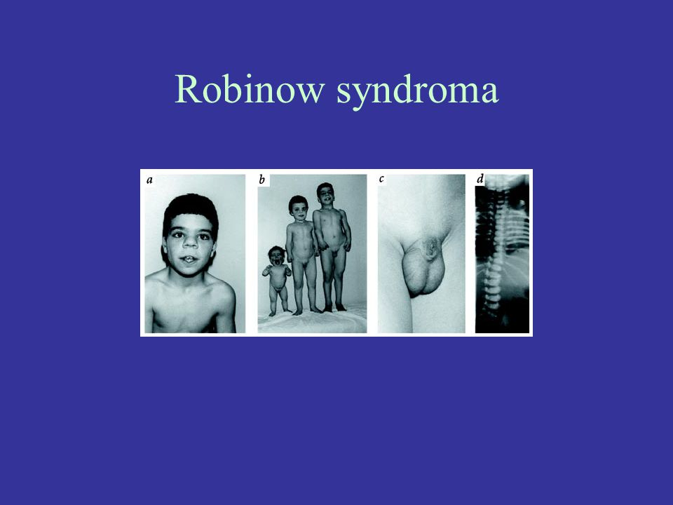 Robinow syndroma