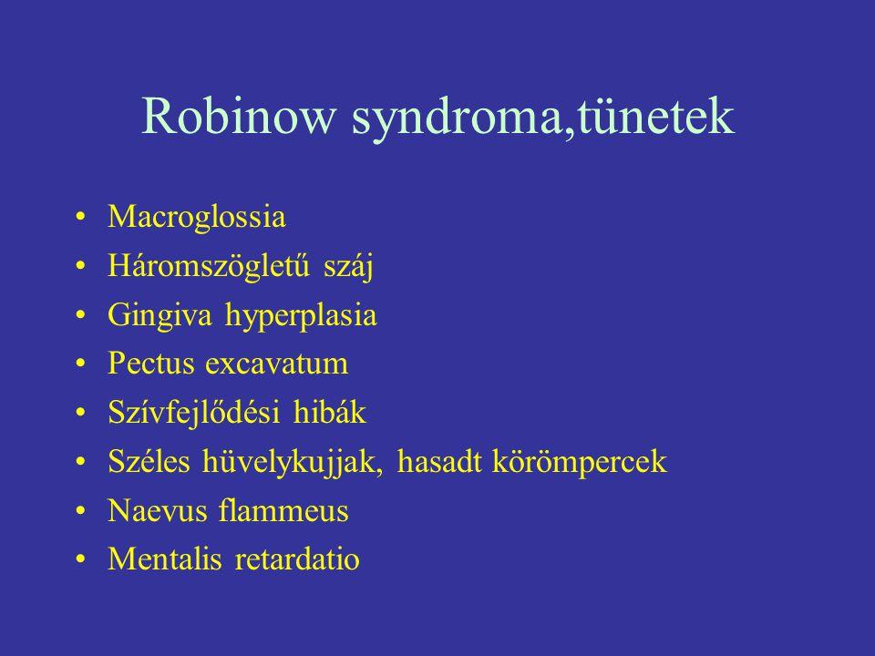 Robinow syndroma,tünetek Macroglossia Háromszögletű száj Gingiva hyperplasia Pectus excavatum Szívfejlődési hibák Széles hüvelykujjak, hasadt körömper