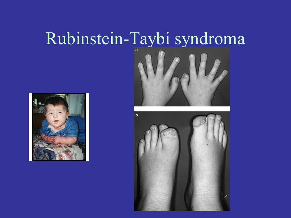 Rubinstein-Taybi syndroma
