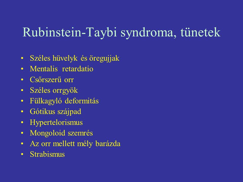 Rubinstein-Taybi syndroma, tünetek Széles hüvelyk és öregujjak Mentalis retardatio Csőrszerű orr Széles orrgyök Fülkagyló deformitás Gótikus szájpad H