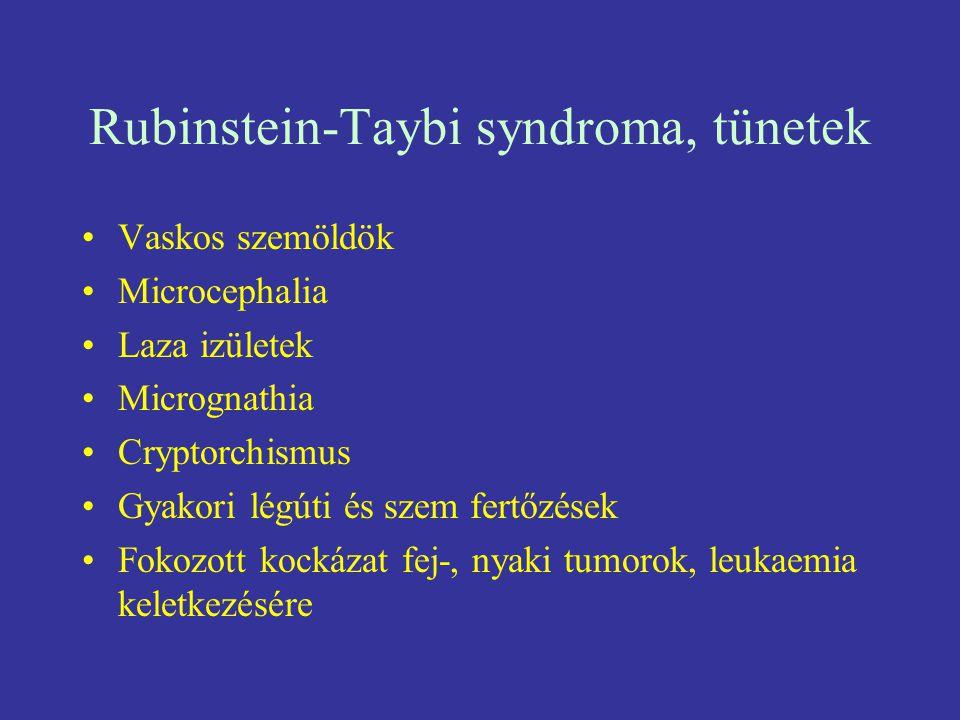 Rubinstein-Taybi syndroma, tünetek Vaskos szemöldök Microcephalia Laza izületek Micrognathia Cryptorchismus Gyakori légúti és szem fertőzések Fokozott
