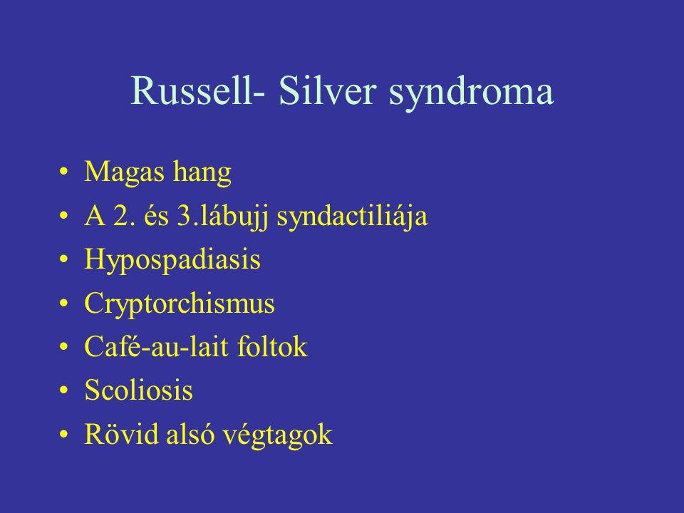 Russell- Silver syndroma Magas hang A 2. és 3.lábujj syndactiliája Hypospadiasis Cryptorchismus Café-au-lait foltok Scoliosis Rövid alsó végtagok