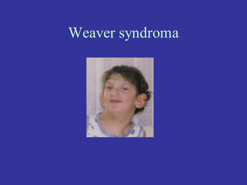 Weaver syndroma