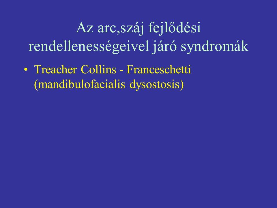 Az arc,száj fejlődési rendellenességeivel járó syndromák Treacher Collins - Franceschetti (mandibulofacialis dysostosis)