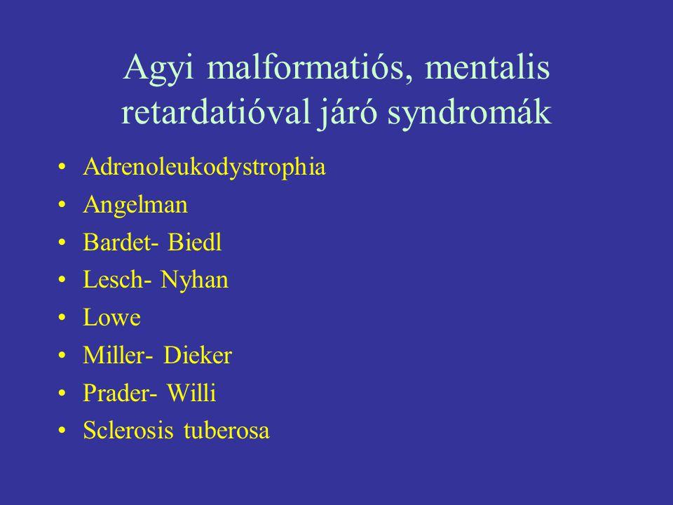 Agyi malformatiós, mentalis retardatióval járó syndromák Adrenoleukodystrophia Angelman Bardet- Biedl Lesch- Nyhan Lowe Miller- Dieker Prader- Willi S