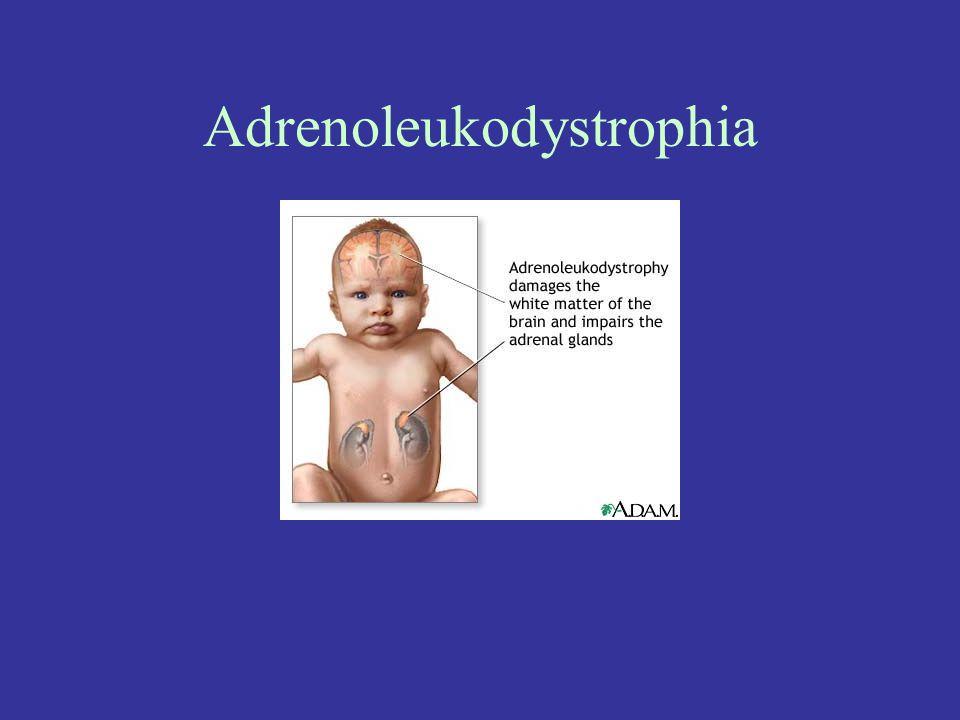 Adrenoleukodystrophia