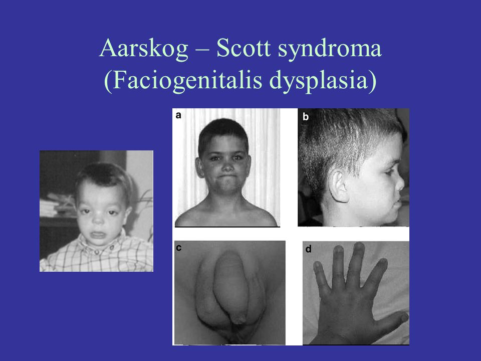 Aarskog – Scott syndroma (Faciogenitalis dysplasia)