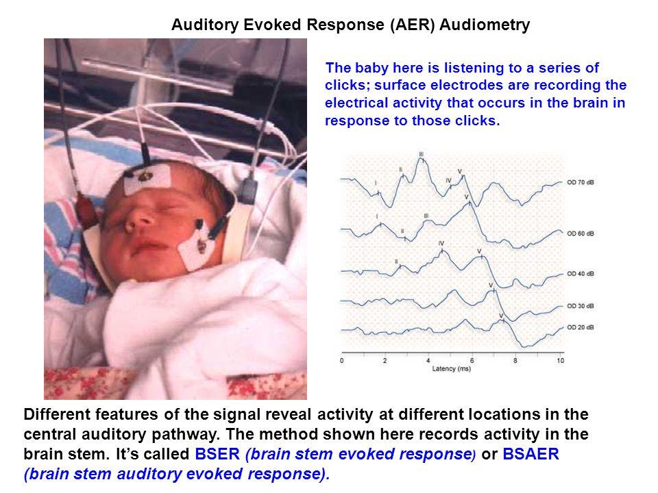 Leszálló pályák - a hallópálya minden szintjén indulnak leszálló rostok, amelyek révén a magasabb szint kontrolálja a felfelé vezetett információ továbbítását Legismertebb a tr.