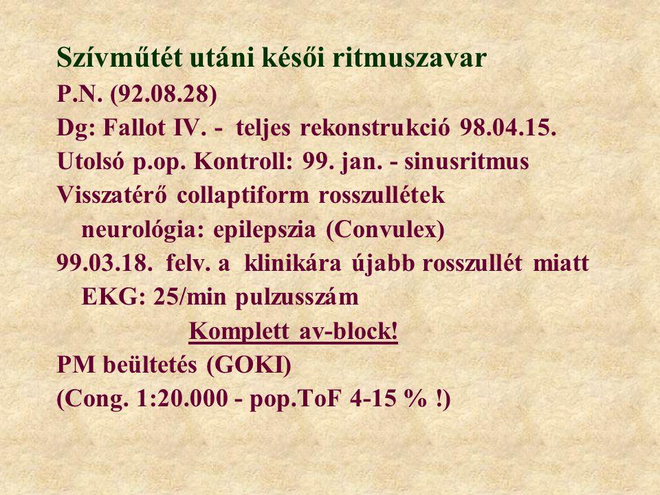 Szívműtét utáni késői ritmuszavar P.N. (92.08.28) Dg: Fallot IV. - teljes rekonstrukció 98.04.15. Utolsó p.op. Kontroll: 99. jan. - sinusritmus Vissza