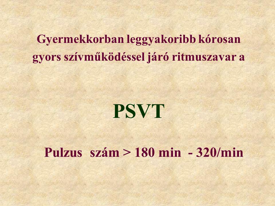 Gyermekkorban leggyakoribb kórosan gyors szívműködéssel járó ritmuszavar a PSVT Pulzus szám > 180 min - 320/min