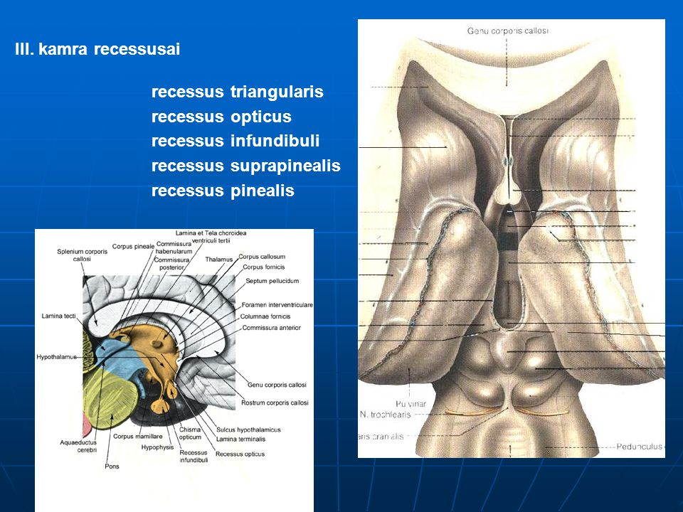 III. kamra recessusai recessus triangularis recessus opticus recessus infundibuli recessus suprapinealis recessus pinealis