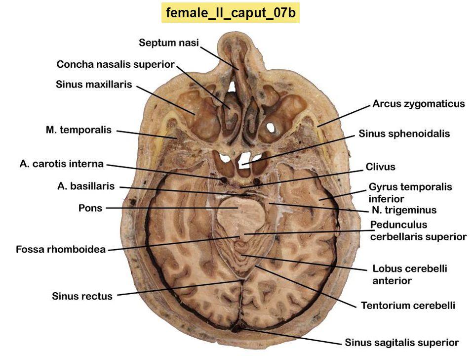 female_II_caput_07b
