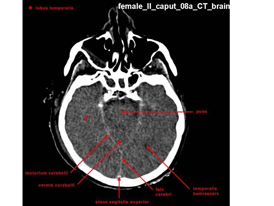 female_II_caput_08a_CT_brain
