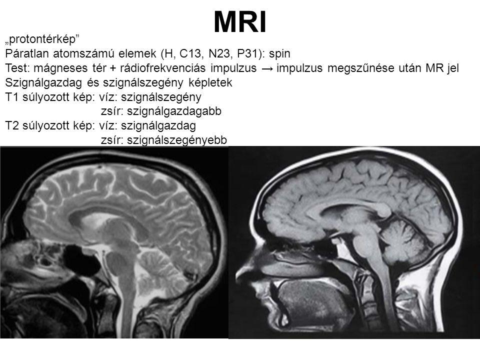 """MRI """"protontérkép"""" Páratlan atomszámú elemek (H, C13, N23, P31): spin Test: mágneses tér + rádiofrekvenciás impulzus → impulzus megszűnése után MR jel"""