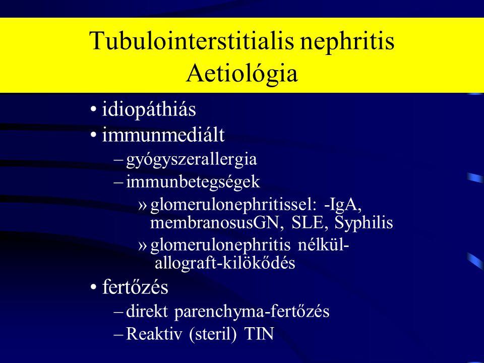 Tubulointerstitialis nephritis Aetiológia idiopáthiás immunmediált –gyógyszerallergia –immunbetegségek »glomerulonephritissel: -IgA, membranosusGN, SL
