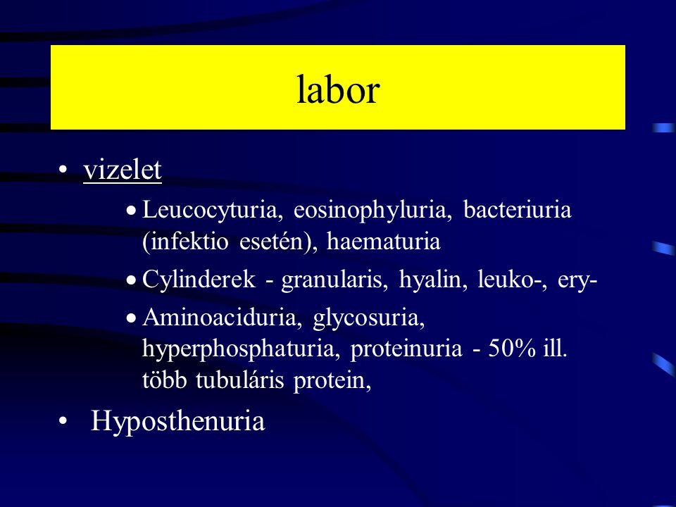 labor vizelet  Leucocyturia, eosinophyluria, bacteriuria (infektio esetén), haematuria  Cylinderek - granularis, hyalin, leuko-, ery-  Aminoaciduri