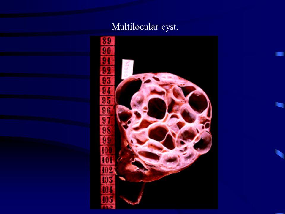 Multilocular cyst.