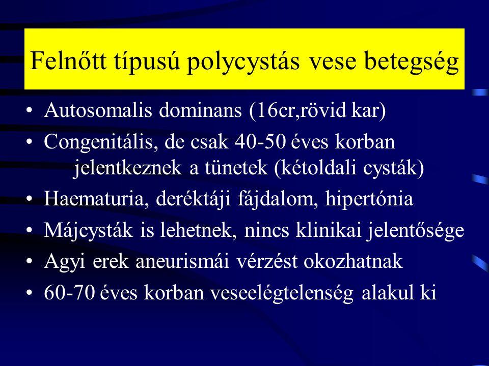 Felnőtt típusú polycystás vese betegség Autosomalis dominans (16cr,rövid kar) Congenitális, de csak 40-50 éves korban jelentkeznek a tünetek (kétoldal