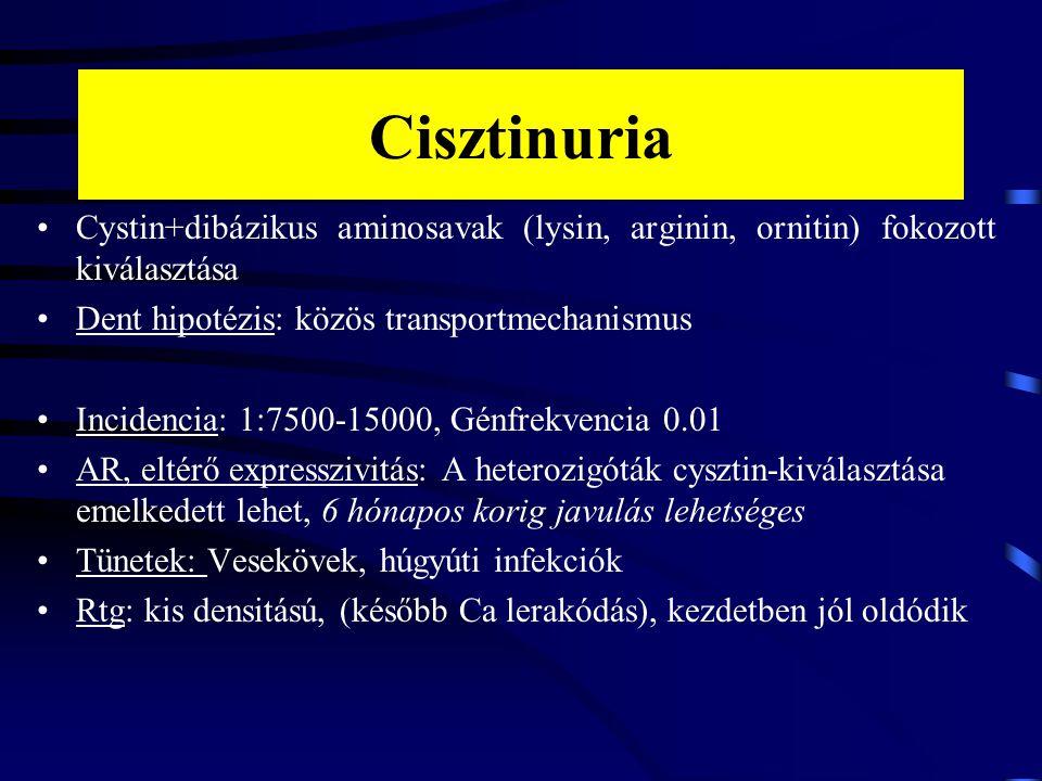 Cisztinuria Cystin+dibázikus aminosavak (lysin, arginin, ornitin) fokozott kiválasztása Dent hipotézis: közös transportmechanismus Incidencia: 1:7500-