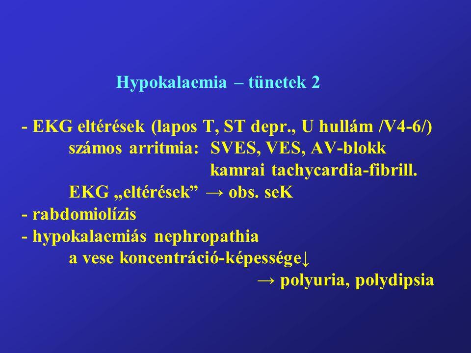 Hypokalaemia – tünetek 2 - EKG eltérések (lapos T, ST depr., U hullám /V4-6/) számos arritmia: SVES, VES, AV-blokk kamrai tachycardia-fibrill.