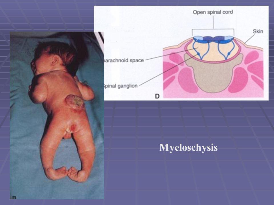 Myeloschysis