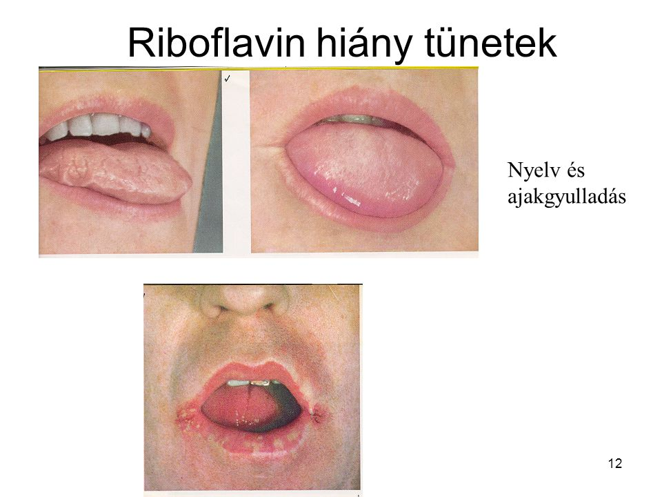 12 Riboflavin hiány tünetek Nyelv és ajakgyulladás
