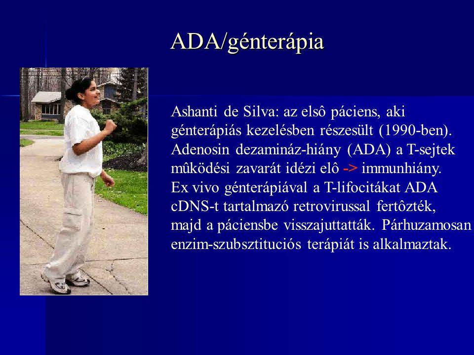 ADA/génterápia Ashanti de Silva: az elsô páciens, aki génterápiás kezelésben részesült (1990-ben).