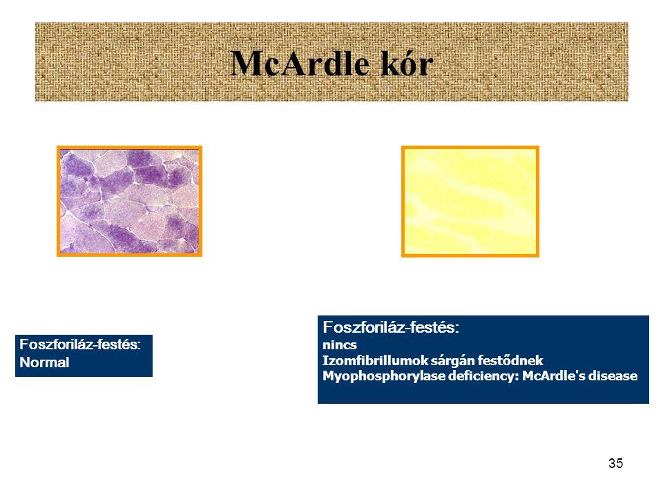34 Andersen kór Glycogenosis Type IV Extrém módon ritka örökleges anyagcsere megbetegédés amylo-1:4,1:6-transglucosidase (branching enzyme) hiány Glik