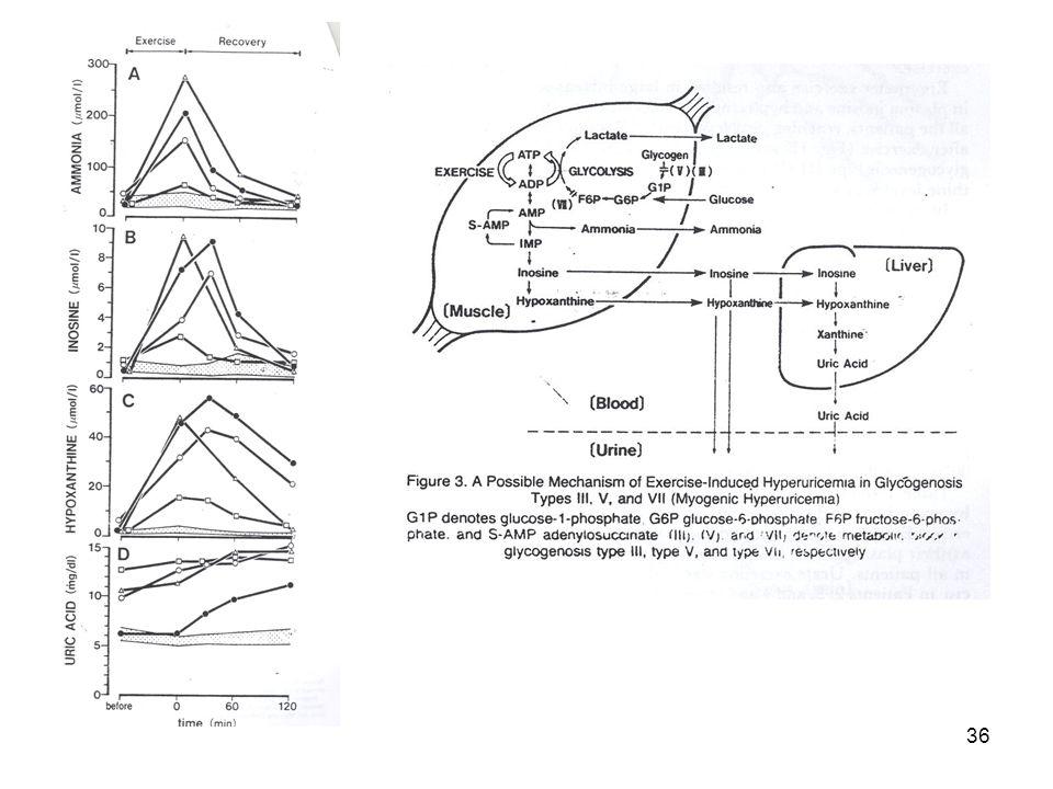 35 McArdle kór Foszforiláz-festés: Normal Foszforiláz-festés: nincs Izomfibrillumok sárgán festődnek Myophosphorylase deficiency: McArdle's disease