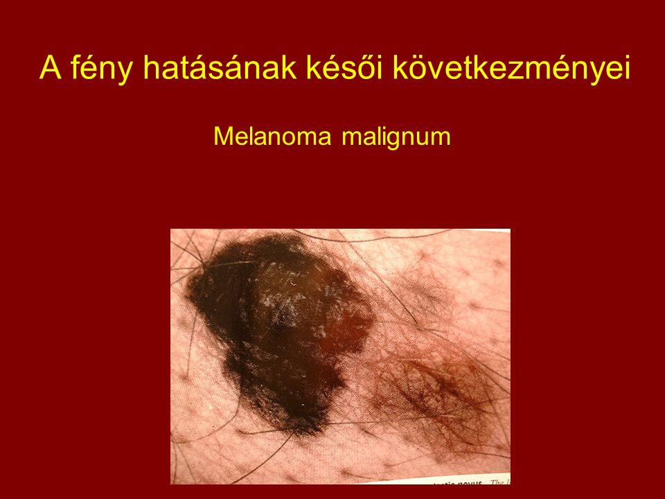 A fény hatásának késői következményei Melanoma malignum