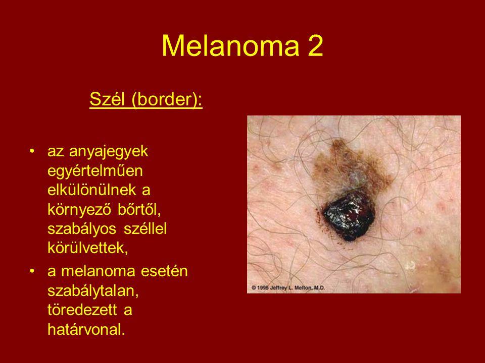 Melanoma 2 Szél (border): az anyajegyek egyértelműen elkülönülnek a környező bőrtől, szabályos széllel körülvettek, a melanoma esetén szabálytalan, tö