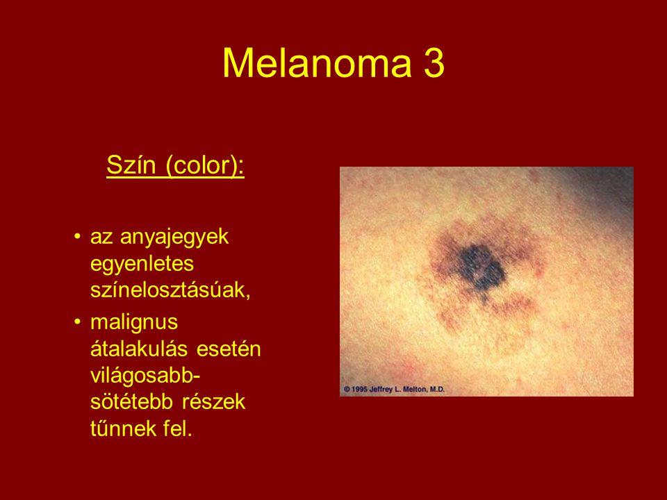 Melanoma 3 Szín (color): az anyajegyek egyenletes színelosztásúak, malignus átalakulás esetén világosabb- sötétebb részek tűnnek fel.
