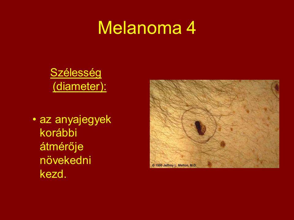 Melanoma 4 Szélesség (diameter): az anyajegyek korábbi átmérője növekedni kezd.