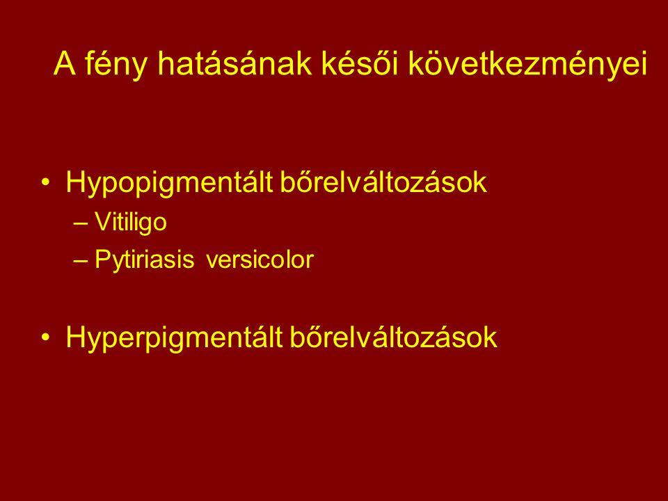 A fény hatásának késői következményei Hypopigmentált bőrelváltozások –Vitiligo –Pytiriasis versicolor Hyperpigmentált bőrelváltozások