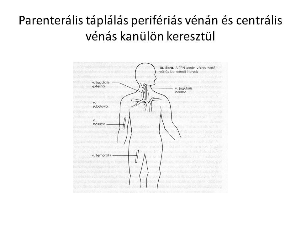 Parenterális táplálás perifériás vénán és centrális vénás kanülön keresztül