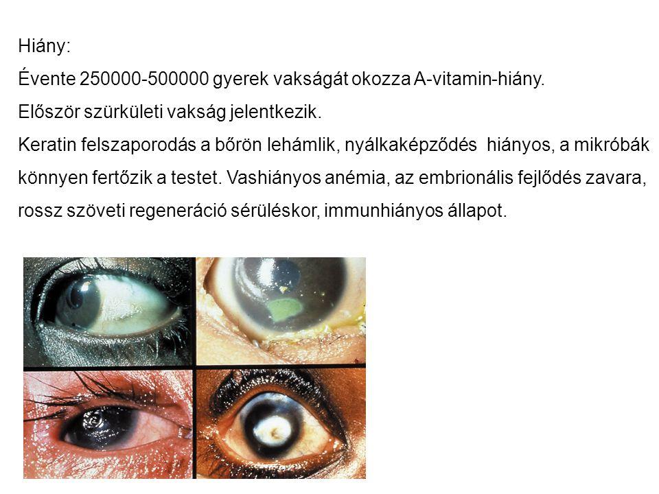 Hiány: Évente 250000-500000 gyerek vakságát okozza A-vitamin-hiány. Először szürkületi vakság jelentkezik. Keratin felszaporodás a bőrön lehámlik, nyá