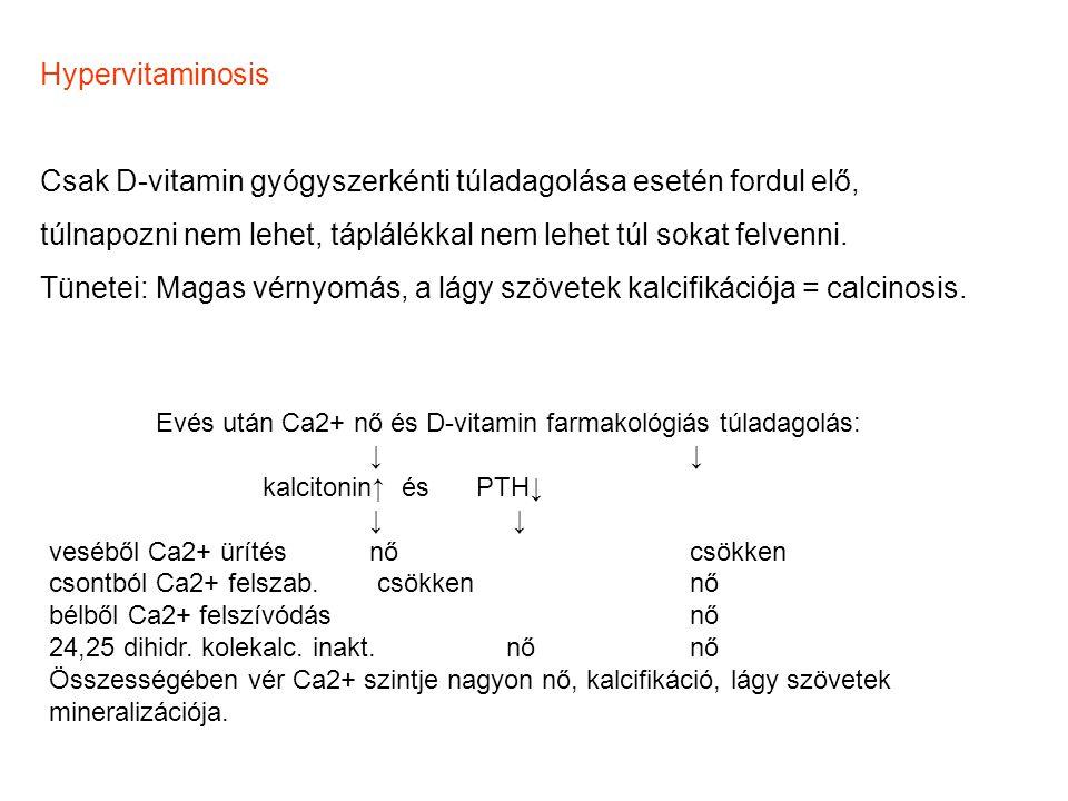 Hypervitaminosis Csak D-vitamin gyógyszerkénti túladagolása esetén fordul elő, túlnapozni nem lehet, táplálékkal nem lehet túl sokat felvenni. Tünetei