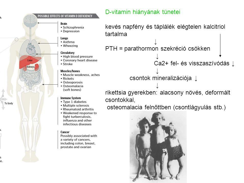 D-vitamin hiányának tünetei kevés napfény és táplálék elégtelen kalcitriol tartalma ↓ PTH = parathormon szekréció csökken ↓ Ca2+ fel- és visszaszívódá