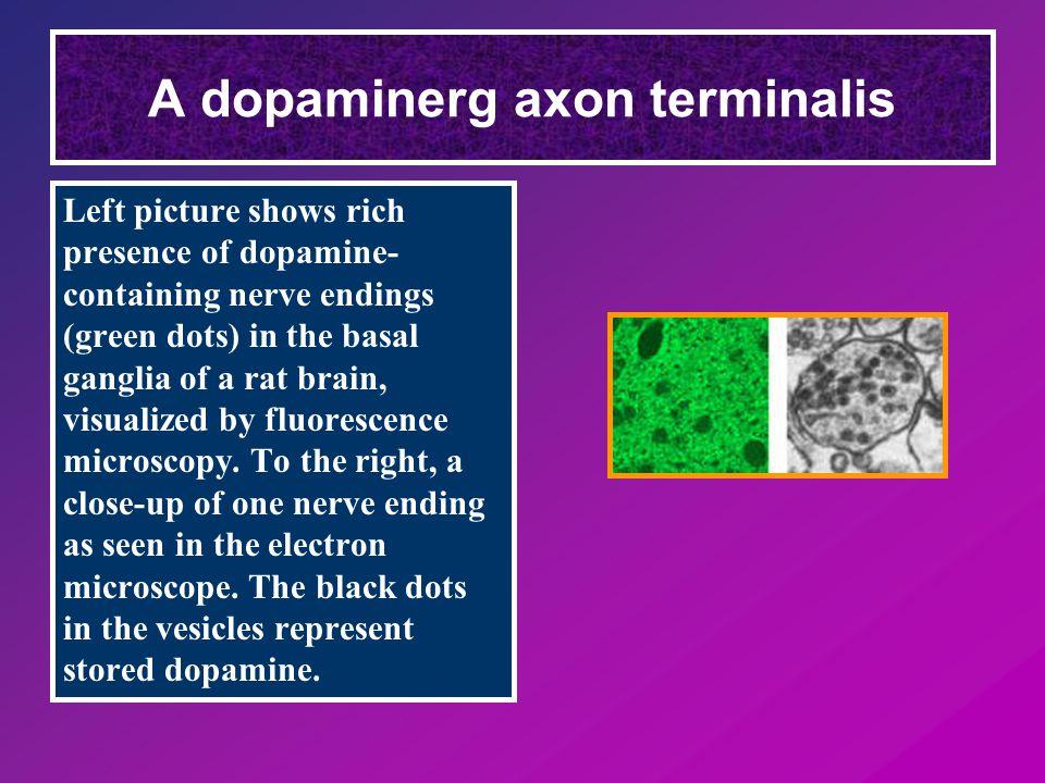 Schizophrenia Egyik elképzelés: Centrális dopaminerg neuronok fokozott aktivitása Hatékony antipsychotikus szerek: Dopamin receptor gátlók – D2 receptor gatlo neuroleptikumok (Parkinson kór alakulhat ki!) Dopamin szint az agyban emelkedett Homovanilinsav szint a liquorban emelkedett D2 receptorok száma megnőtt USA lakosság 1 %-a érintett Kórházi ágyak 25 %-at ilyen betegek foglalják el