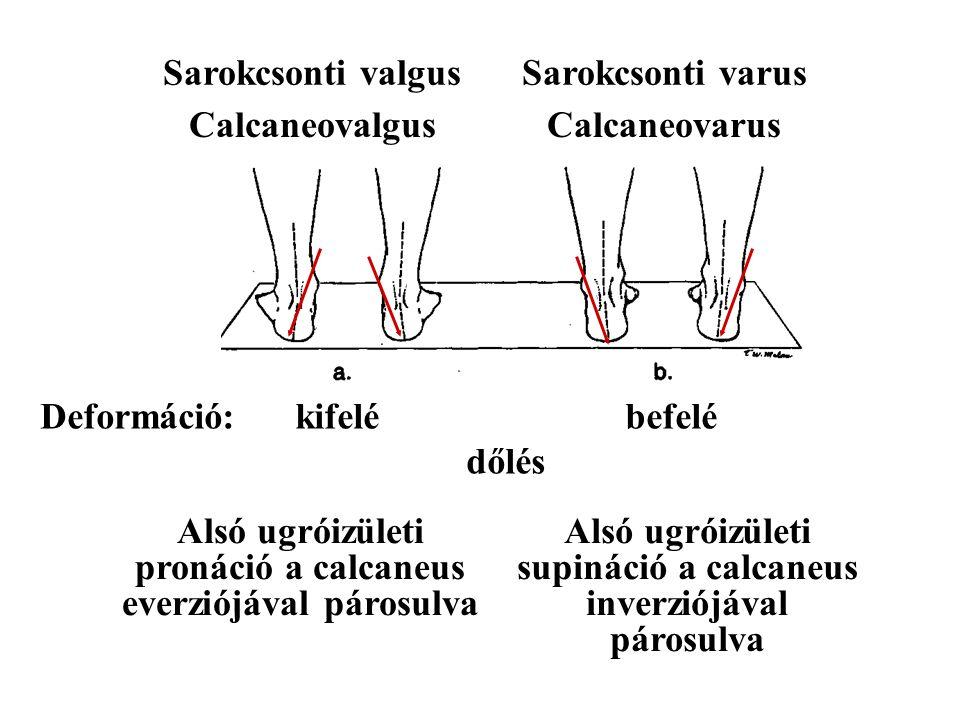 CalcaneovalgusCalcaneovarus Alsó ugróizületi pronáció a calcaneus everziójával párosulva Alsó ugróizületi supináció a calcaneus inverziójával párosulva Sarokcsonti valgusSarokcsonti varus Deformáció: kifelé befelé dőlés